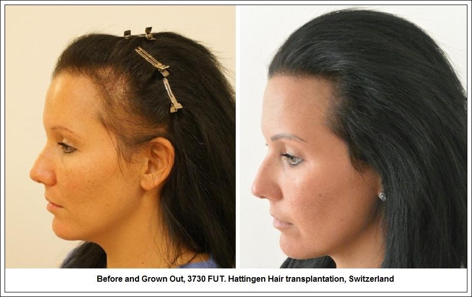 Implant de cheveux pour femme