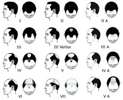 Implant cheveux lyon